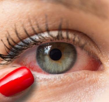 CBD et yeux rouges